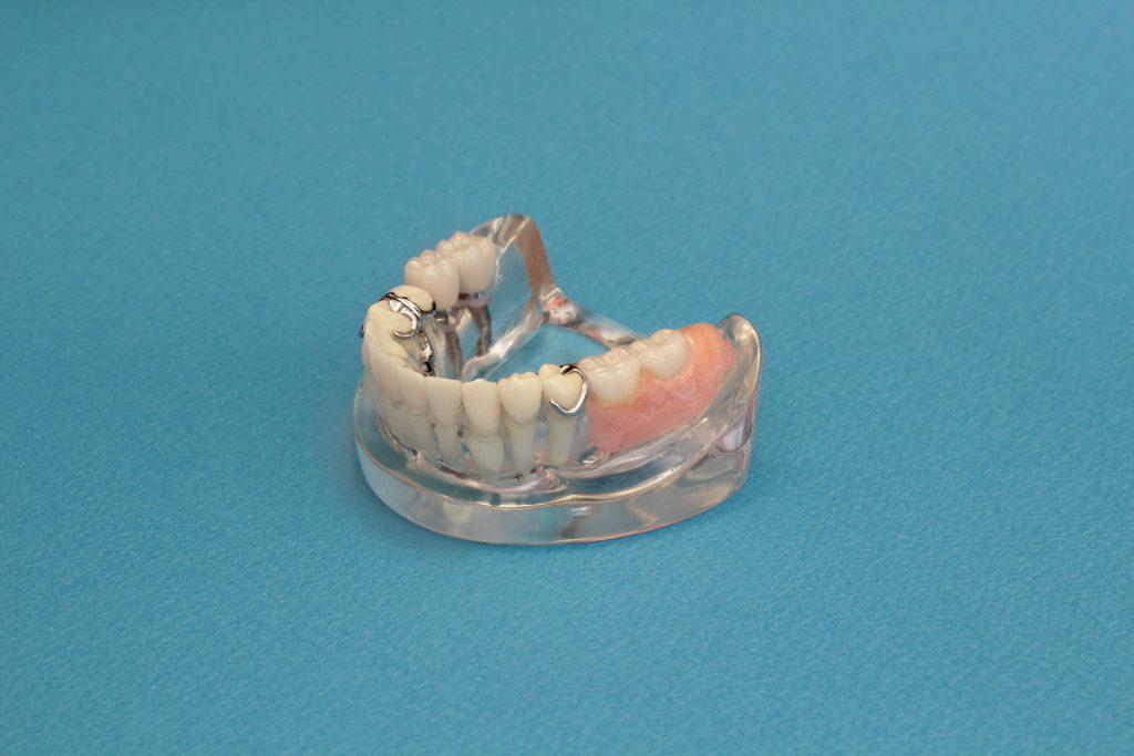 バネを使った部分義歯